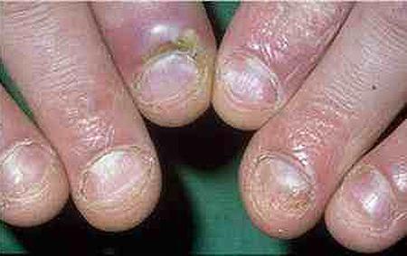 El tratamiento de la uña contundida del dedo del pie